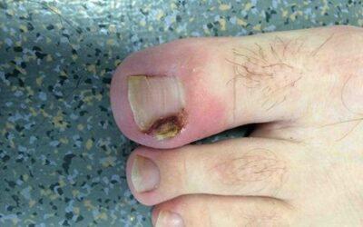 L'ongle incarné ? Ce n'est pas le pied !